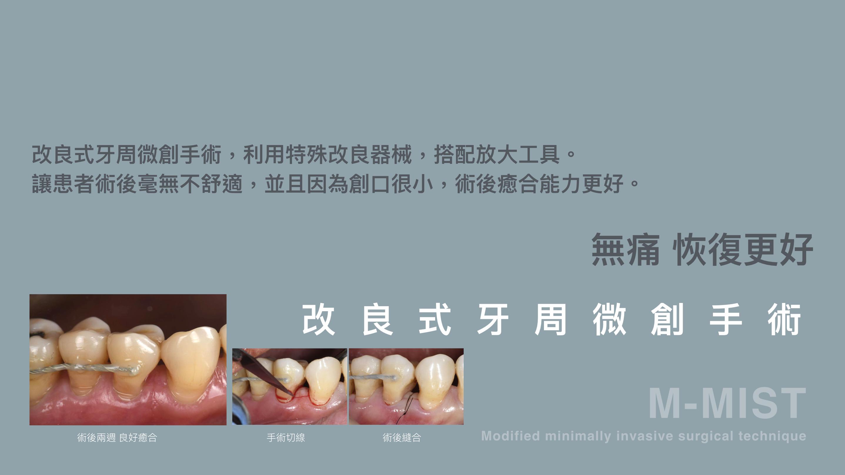 無痛 微創 牙周治療 宜蘭