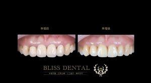 前牙人工植牙